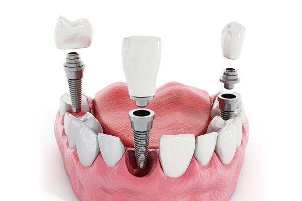 Dental Implants Md V2.jpg